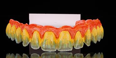 Vollkeramischer Zahnersatz